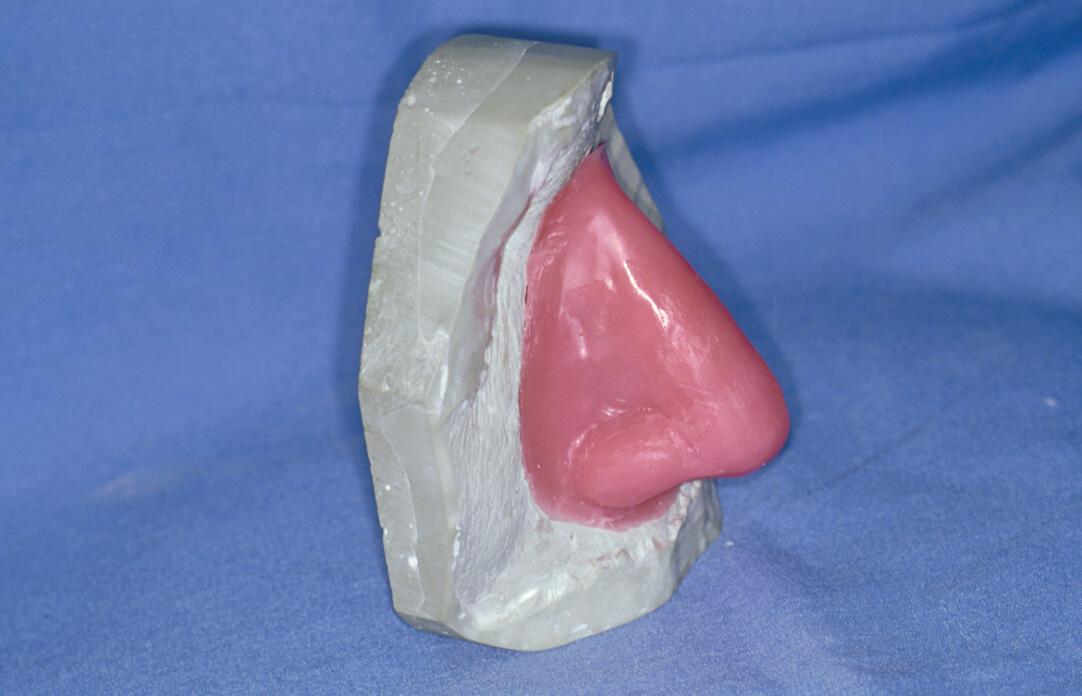 Maxillofacial Prosthesis Dental Vantage Dinh Vo Dds